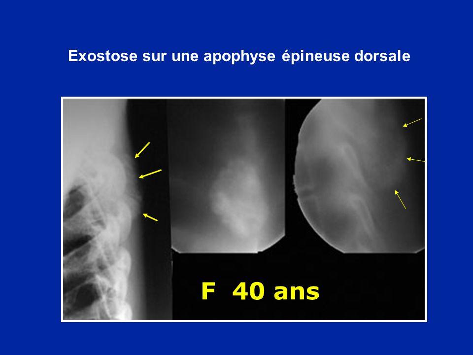 F 40 ans Exostose sur une apophyse épineuse dorsale