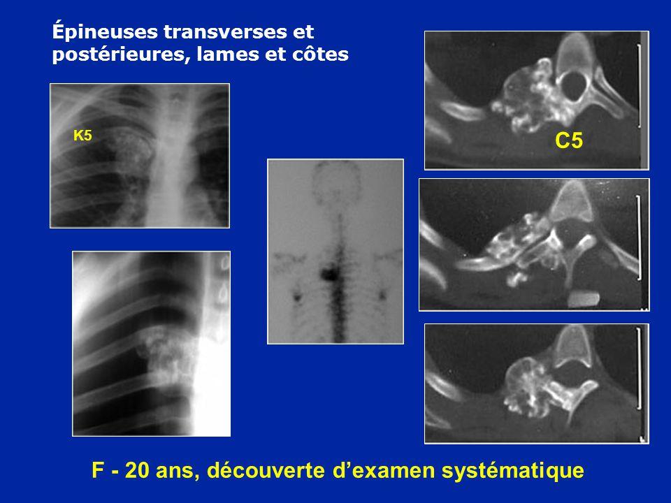 F - 20 ans, découverte dexamen systématique K5 C5 Épineuses transverses et postérieures, lames et côtes