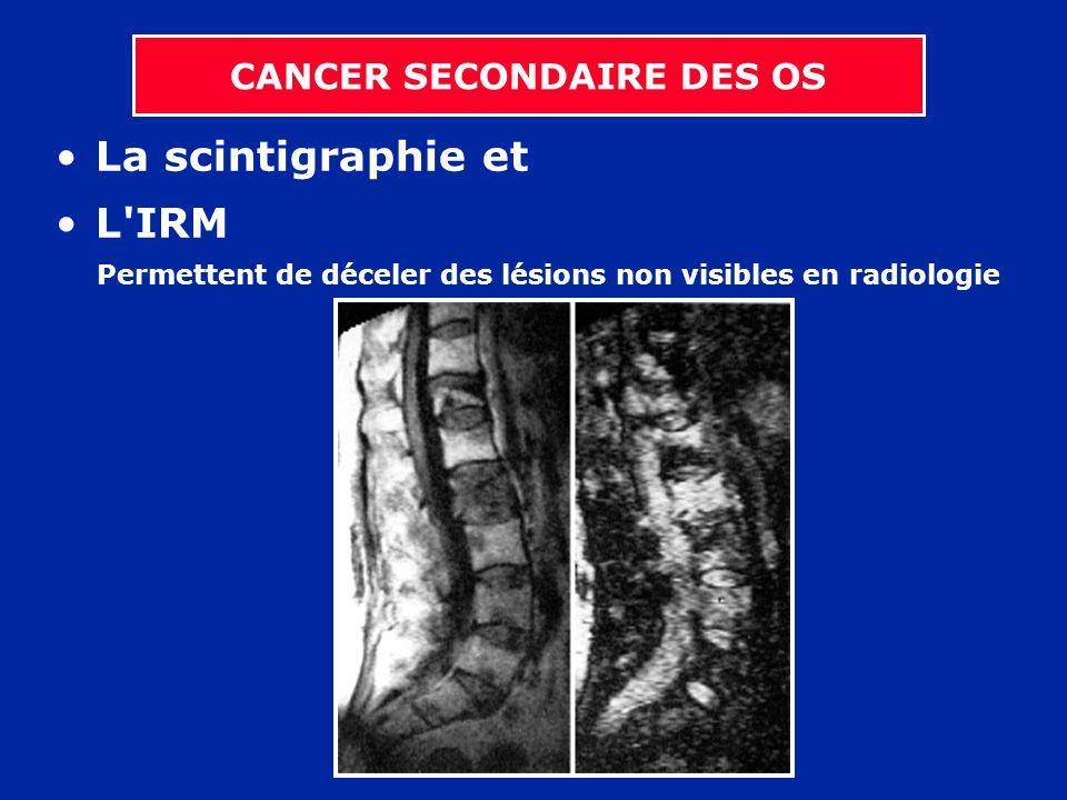 La scintigraphie et L'IRM Permettent de déceler des lésions non visibles en radiologie CANCER SECONDAIRE DES OS