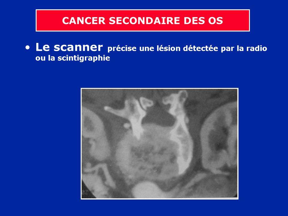 Le scanner précise une lésion détectée par la radio ou la scintigraphie CANCER SECONDAIRE DES OS