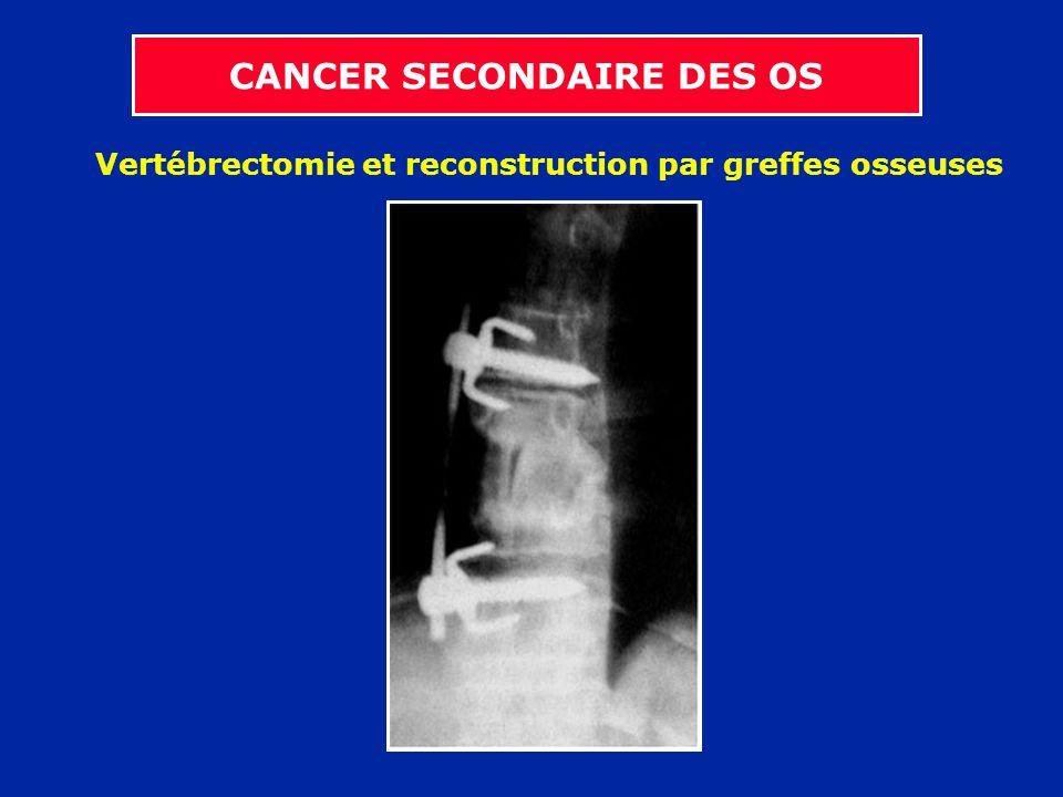 Vertébrectomie et reconstruction par greffes osseuses CANCER SECONDAIRE DES OS