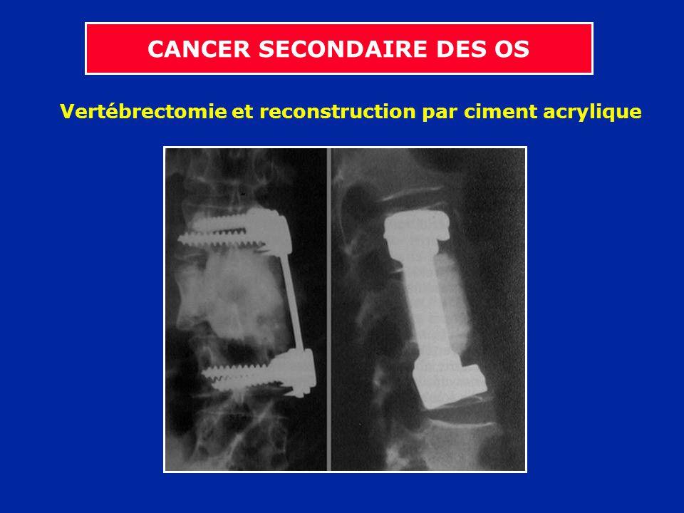 Vertébrectomie et reconstruction par ciment acrylique CANCER SECONDAIRE DES OS