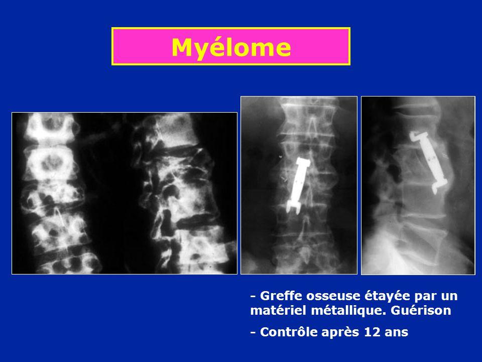 Myélome - Greffe osseuse étayée par un matériel métallique. Guérison - Contrôle après 12 ans