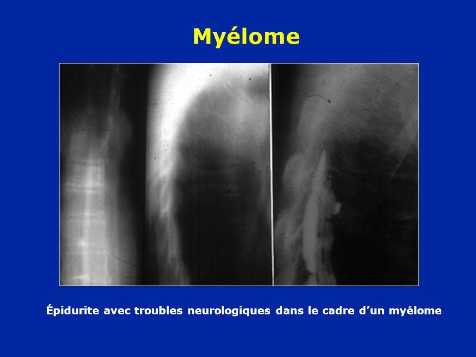 Myélome Épidurite avec troubles neurologiques dans le cadre dun myélome