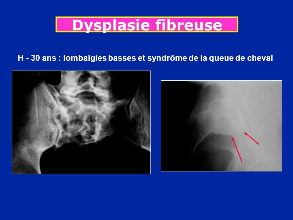 Dysplasie fibreuse H - 30 ans : lombalgies basses et syndrôme de la queue de cheval