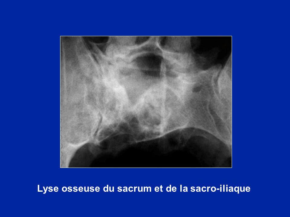 Lyse osseuse du sacrum et de la sacro-iliaque