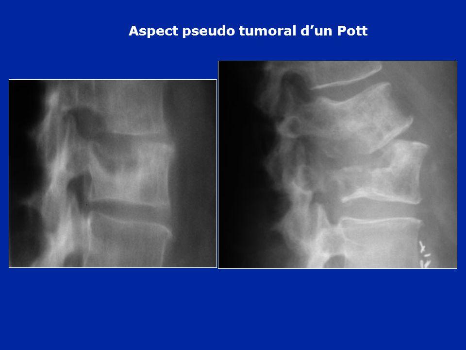 Aspect pseudo tumoral dun Pott