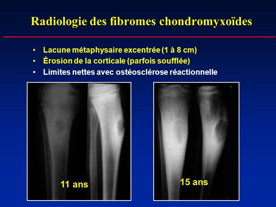 Radiologie des fibromes chondromyxoïdes Lacune métaphysaire excentrée (1 à 8 cm) Érosion de la corticale (parfois soufflée) Limites nettes avec ostéos