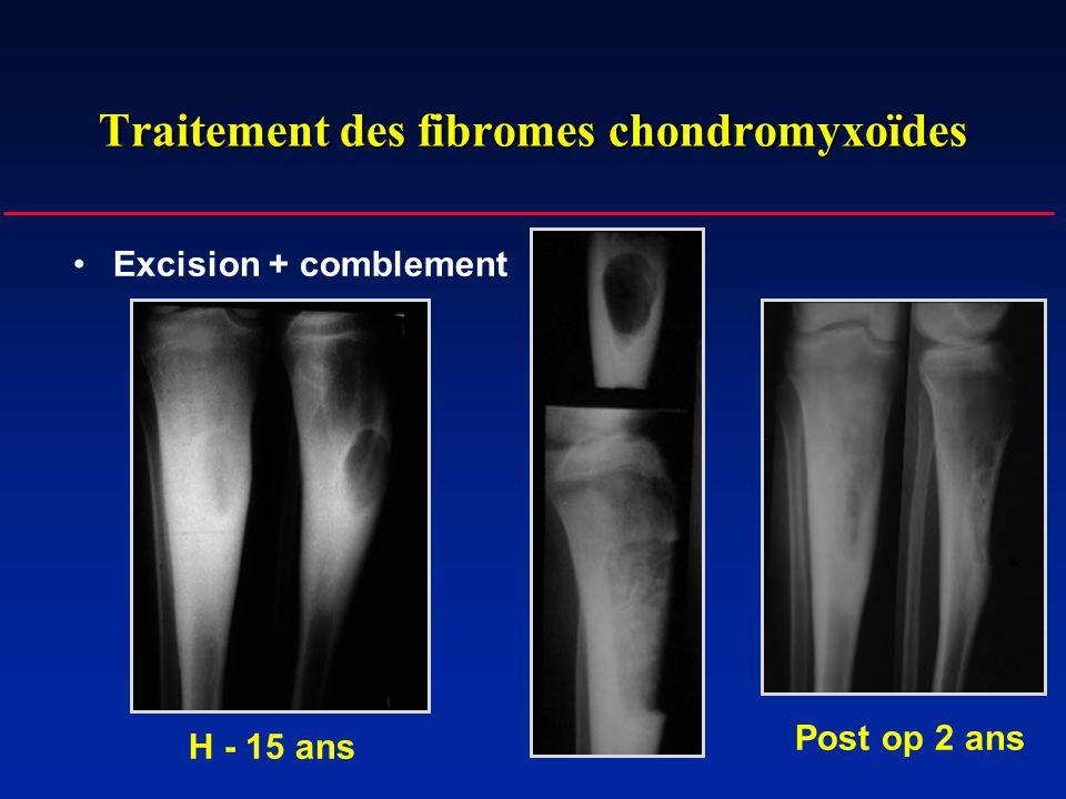 Traitement des fibromes chondromyxoïdes Excision + comblement H - 15 ans Post op 2 ans