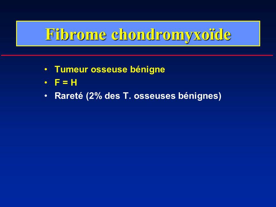 Tumeur osseuse bénigne F = H Rareté (2% des T. osseuses bénignes) Fibrome chondromyxoïde