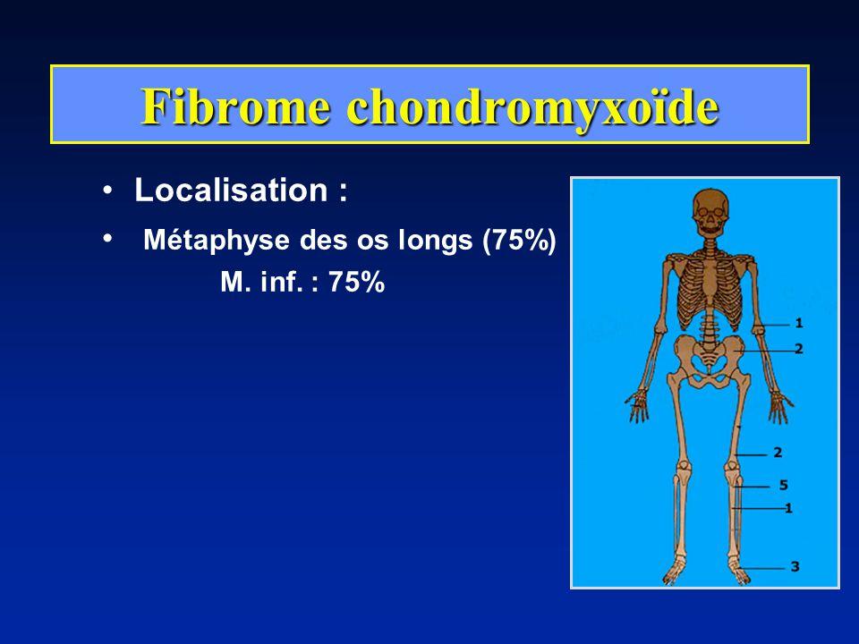 Localisation : Métaphyse des os longs (75%) M. inf. : 75% Fibrome chondromyxoïde