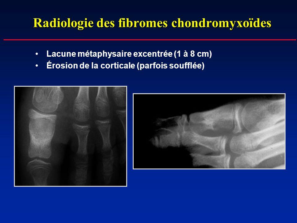 Radiologie des fibromes chondromyxoïdes Lacune métaphysaire excentrée (1 à 8 cm) Érosion de la corticale (parfois soufflée)