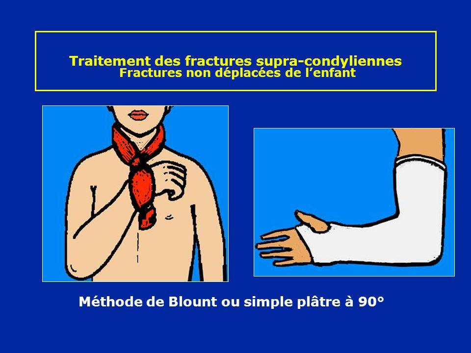 Traitement des fractures supra-condyliennes Fractures non déplacées de lenfant Méthode de Blount ou simple plâtre à 90°