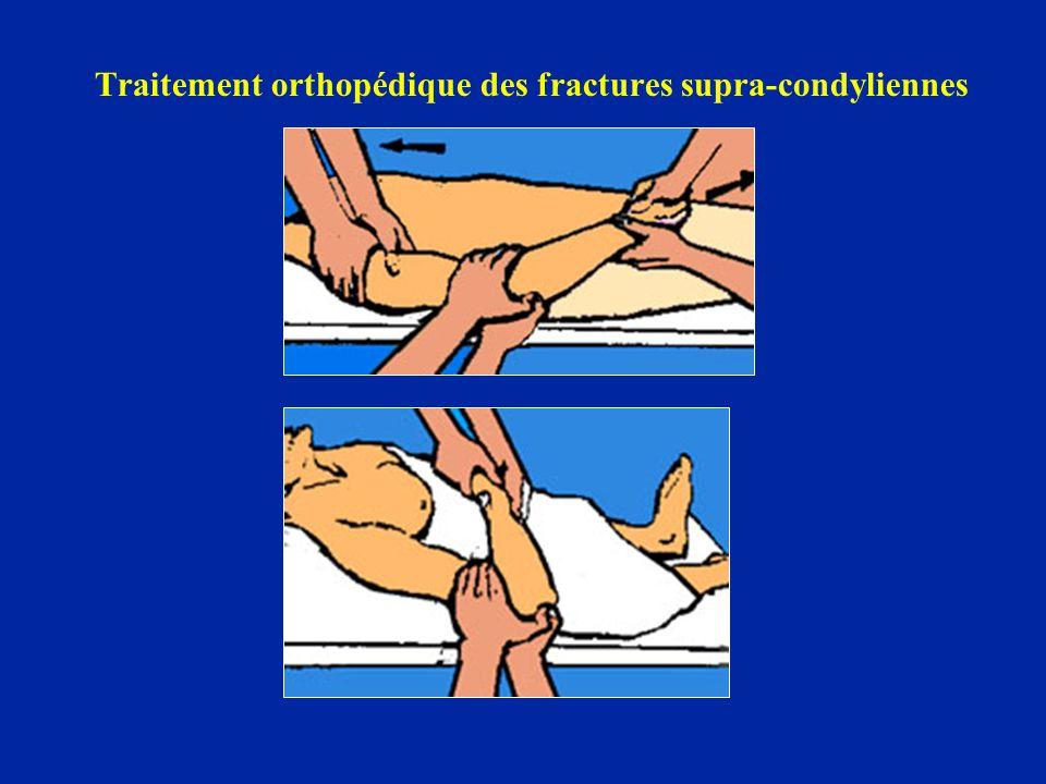 Traitement orthopédique des fractures supra-condyliennes