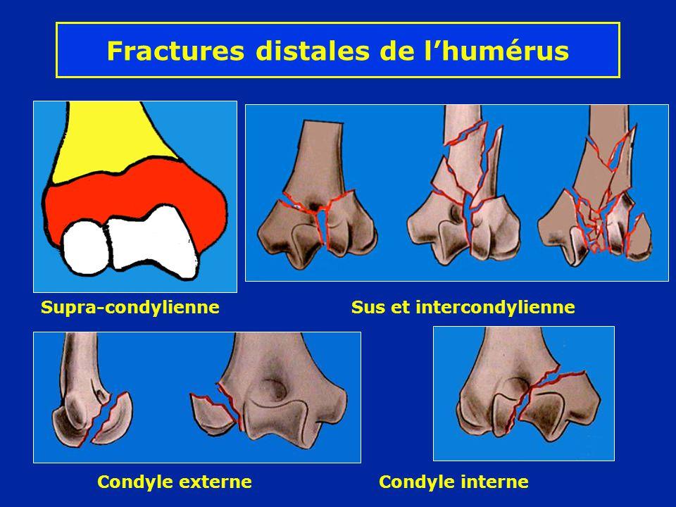 Fracture complexe de la palette humérale