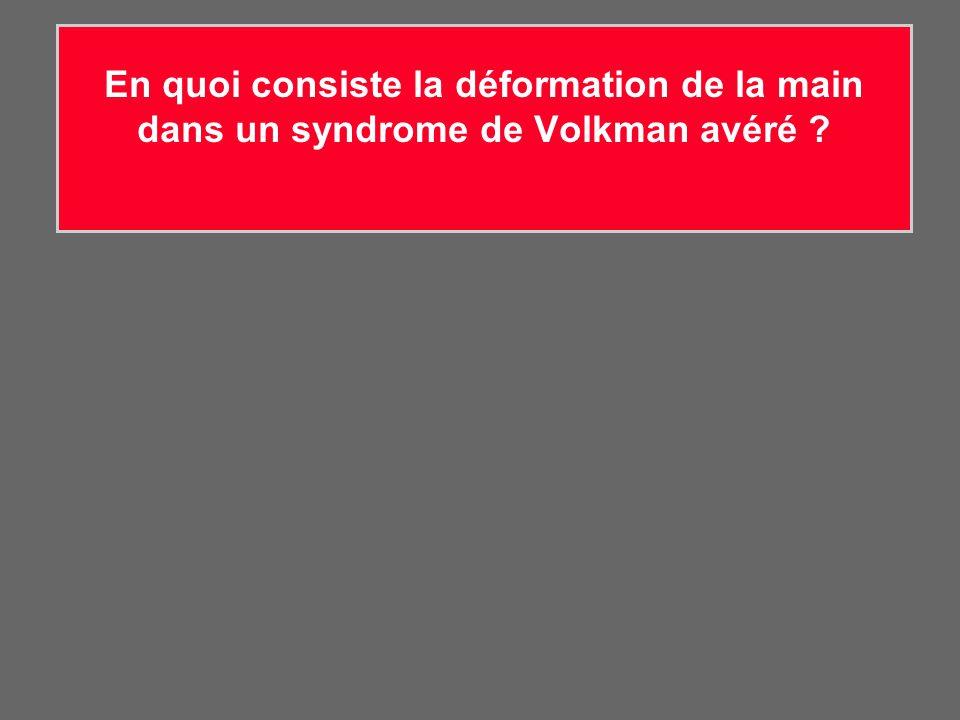 En quoi consiste la déformation de la main dans un syndrome de Volkman avéré ?