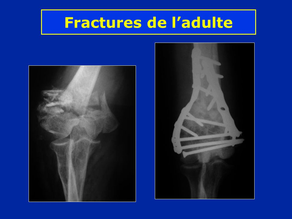 Fractures de ladulte