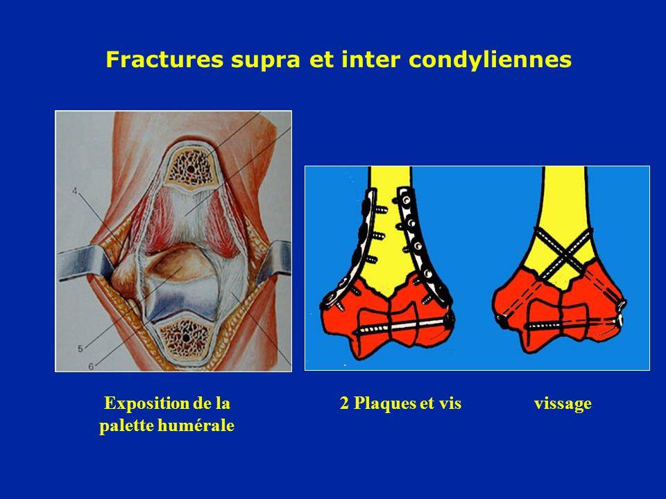 Fractures supra et inter condyliennes Exposition de la2 Plaques et vis vissage palette humérale