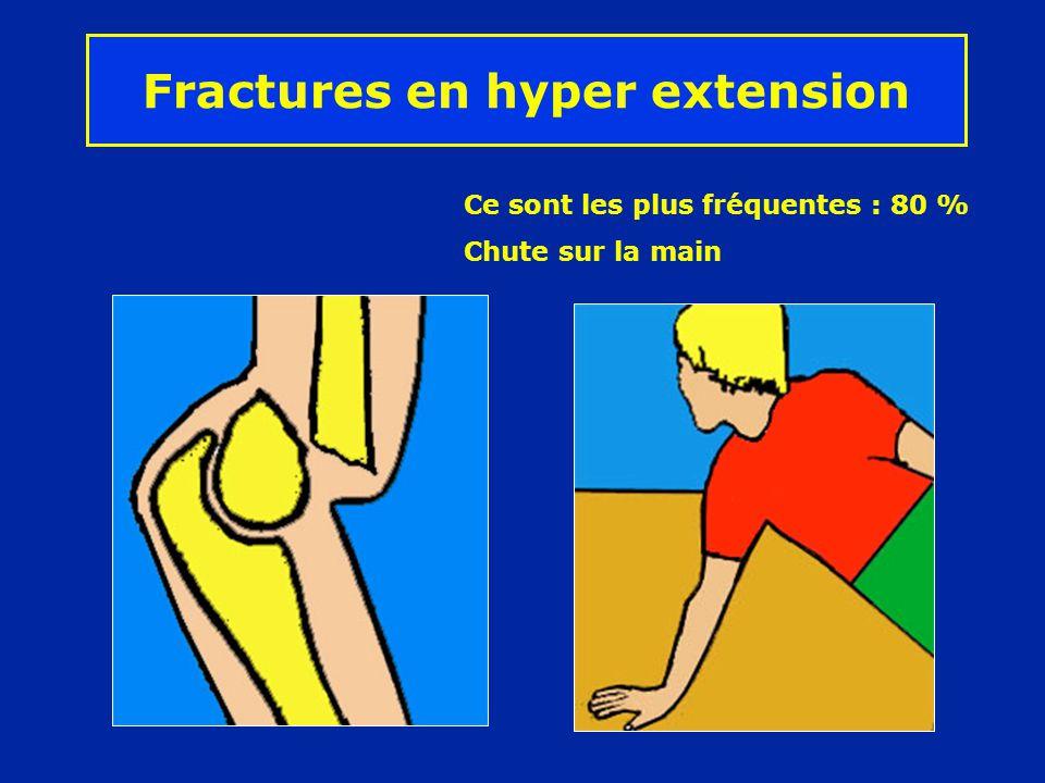 Fractures en hyper extension Ce sont les plus fréquentes : 80 % Chute sur la main