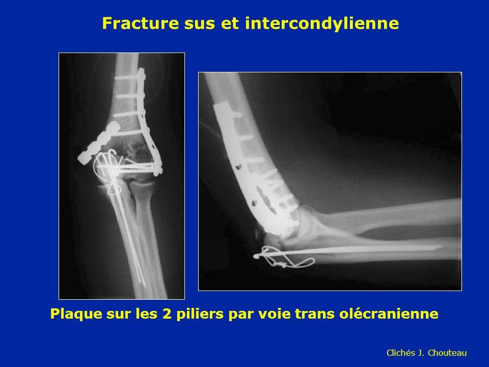 Fracture sus et intercondylienne Plaque sur les 2 piliers par voie trans olécranienne Clichés J. Chouteau