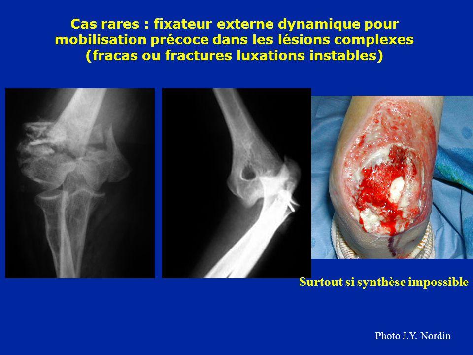 Cas rares : fixateur externe dynamique pour mobilisation précoce dans les lésions complexes (fracas ou fractures luxations instables) Surtout si synth