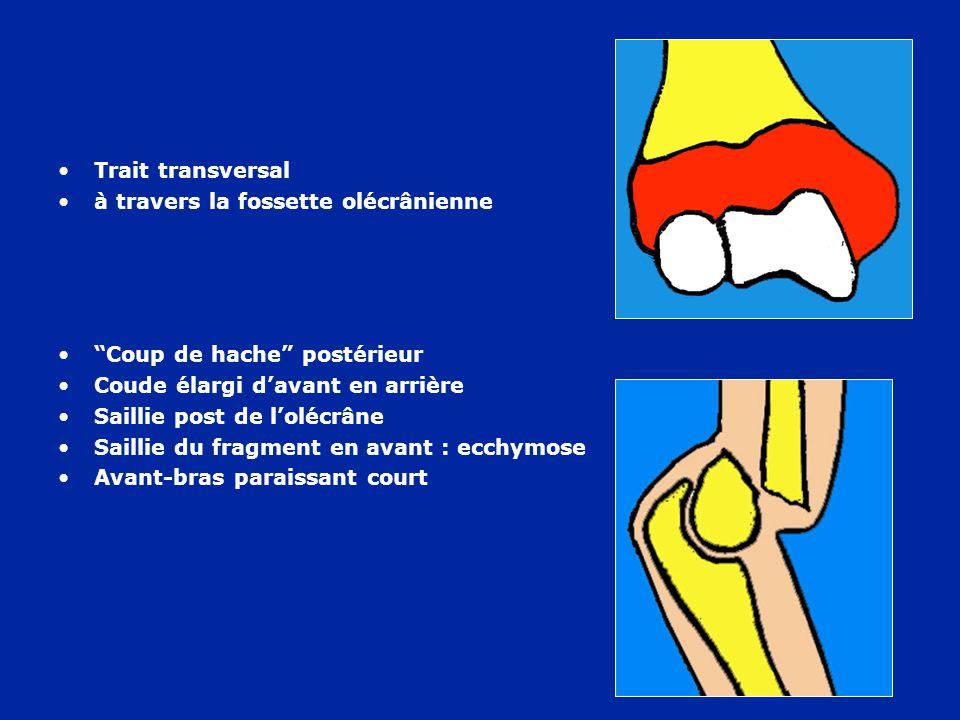 Rétraction ischémique des fléchisseurs : Flexion du poignet Extension des métacarpo-phalangiennes Flexion des phalanges Il faut prévenir le syndrome de Volkmann
