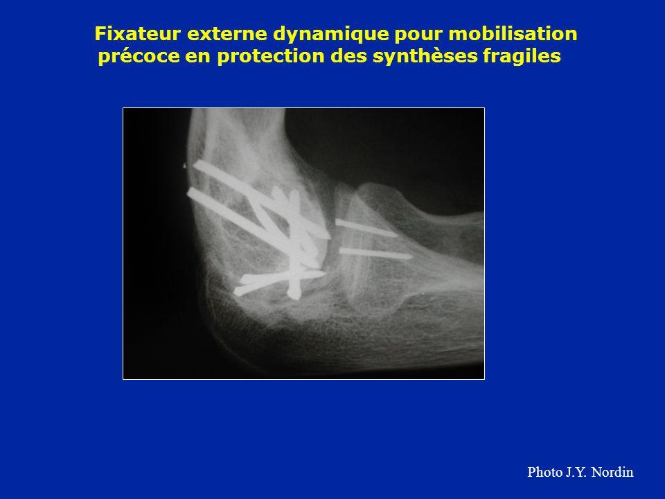 Fixateur externe dynamique pour mobilisation précoce en protection des synthèses fragiles Photo J.Y. Nordin
