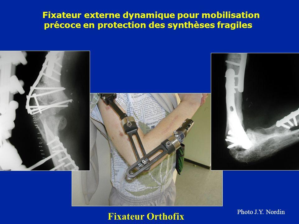 Fixateur externe dynamique pour mobilisation précoce en protection des synthèses fragiles Fixateur Orthofix Photo J.Y. Nordin