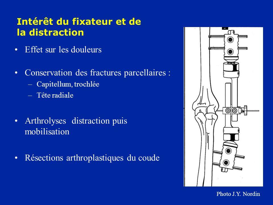 Effet sur les douleurs Conservation des fractures parcellaires : –Capitellum, trochlée –Tête radiale Arthrolyses distraction puis mobilisation Résecti