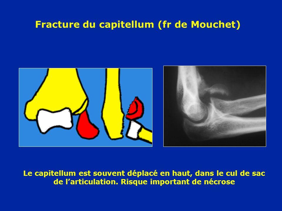 Fracture du capitellum (fr de Mouchet) Le capitellum est souvent déplacé en haut, dans le cul de sac de larticulation. Risque important de nécrose