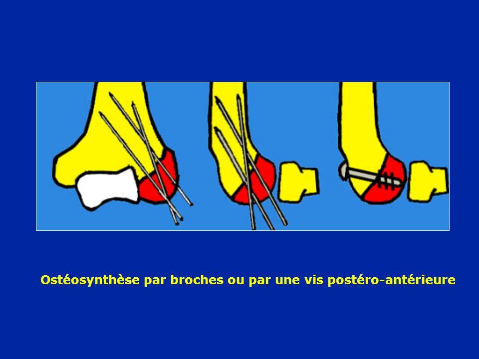 Ostéosynthèse par broches ou par une vis postéro-antérieure