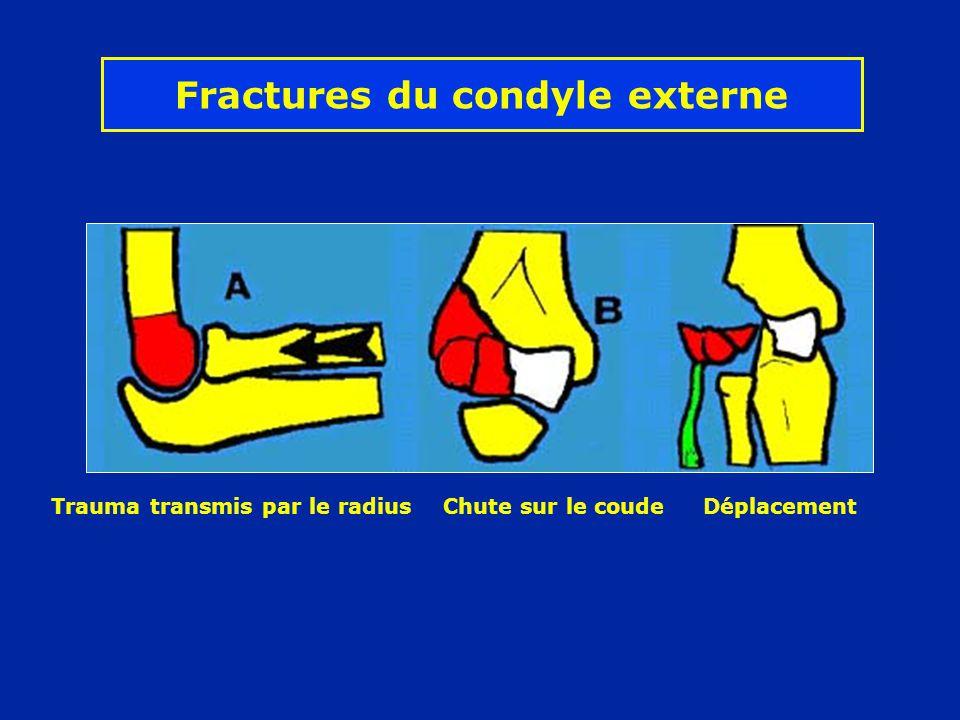 Fractures du condyle externe Trauma transmis par le radius Chute sur le coude Déplacement