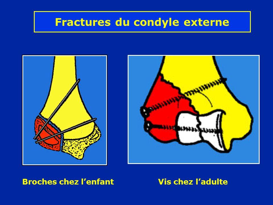 Fractures du condyle externe Broches chez lenfant Vis chez ladulte