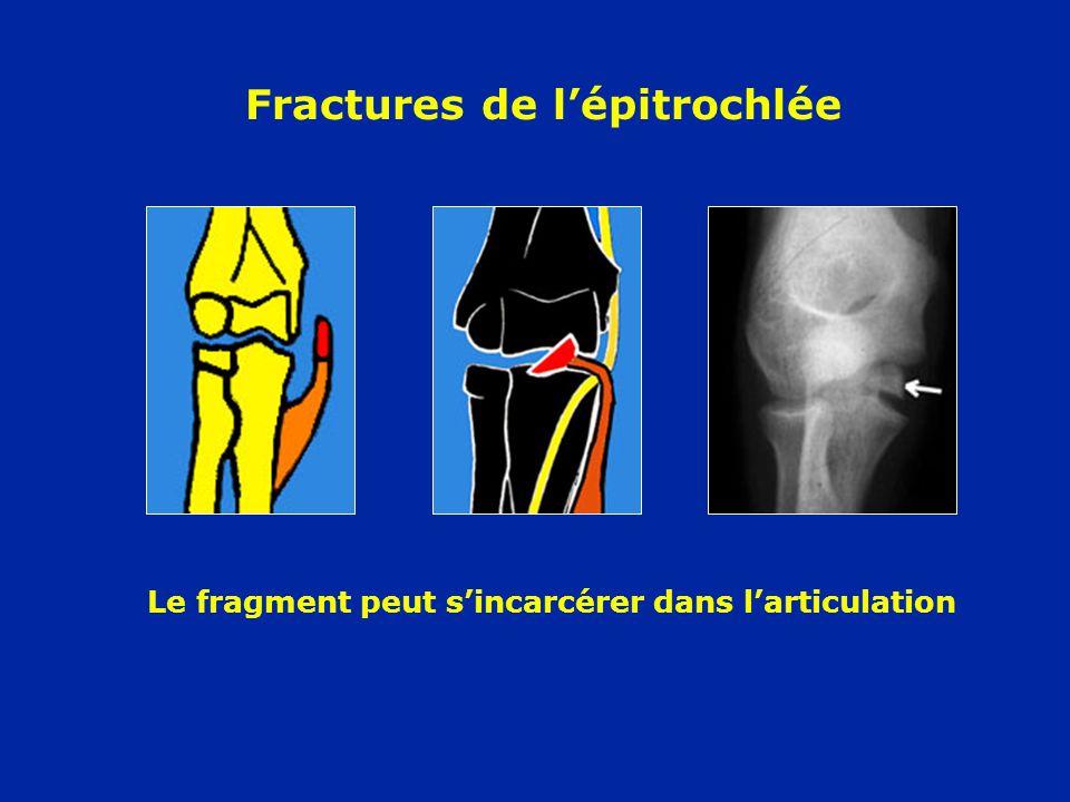 Fractures de lépitrochlée Le fragment peut sincarcérer dans larticulation