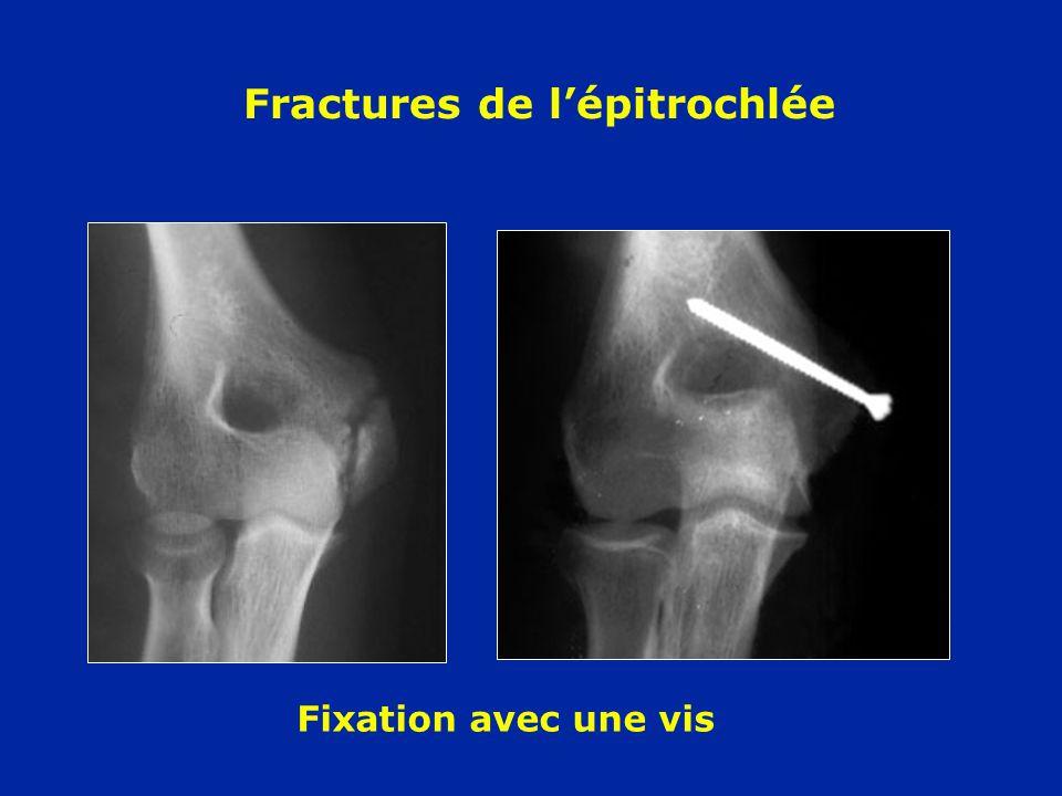 Fractures de lépitrochlée Fixation avec une vis