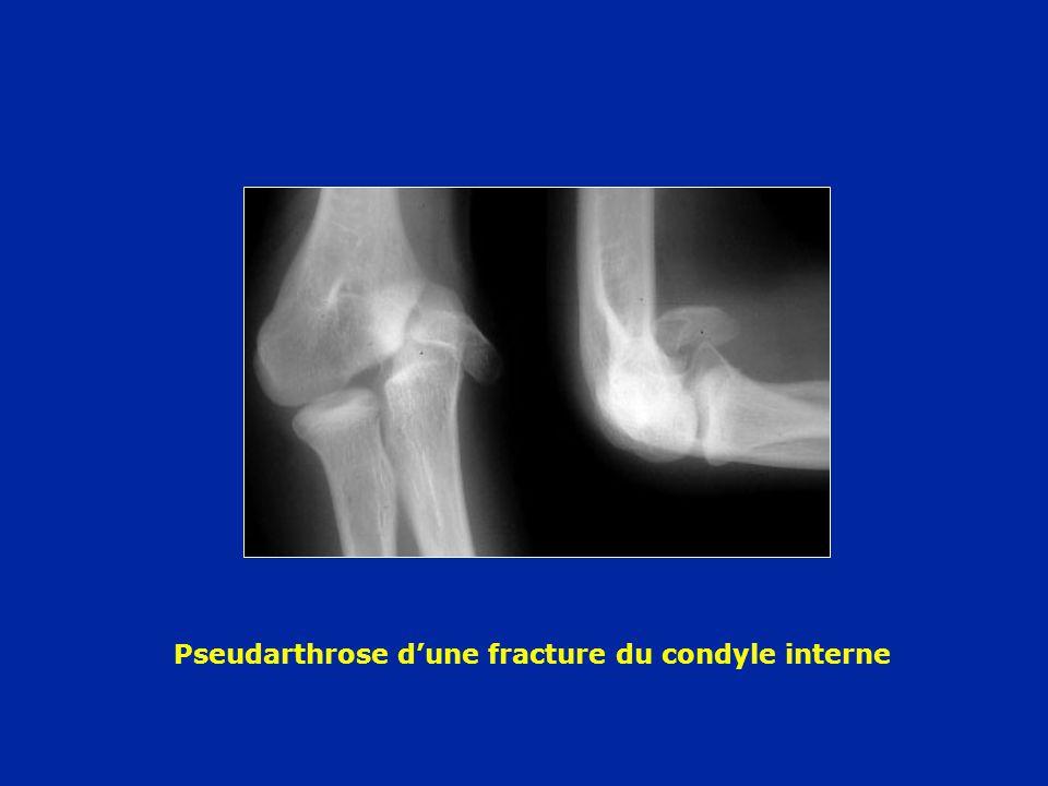 Pseudarthrose dune fracture du condyle interne