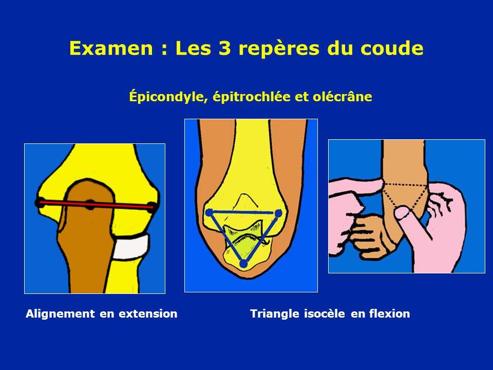 Examen : Les 3 repères du coude Alignement en extension Triangle isocèle en flexion Épicondyle, épitrochlée et olécrâne