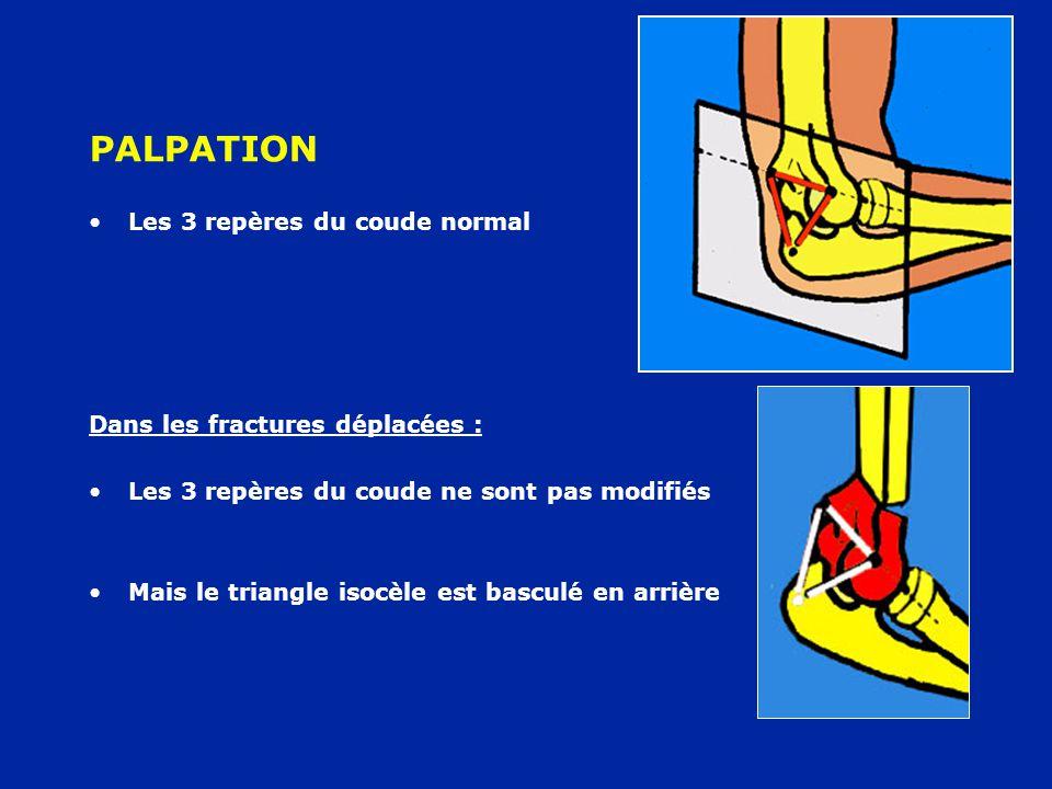 PALPATION Les 3 repères du coude normal Dans les fractures déplacées : Les 3 repères du coude ne sont pas modifiés Mais le triangle isocèle est bascul