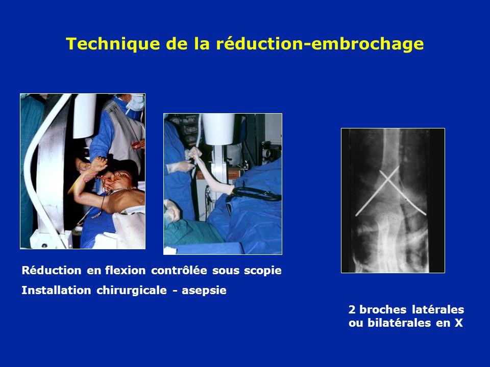 Technique de la réduction-embrochage Réduction en flexion contrôlée sous scopie Installation chirurgicale - asepsie 2 broches latérales ou bilatérales