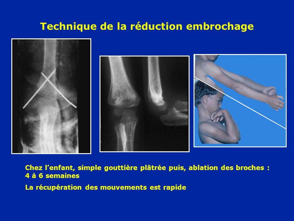 Technique de la réduction embrochage Chez lenfant, simple gouttière plâtrée puis, ablation des broches : 4 à 6 semaines La récupération des mouvements
