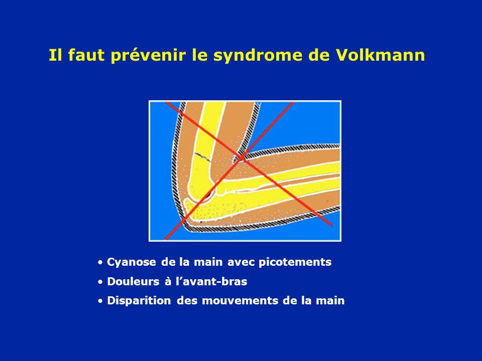 Il faut prévenir le syndrome de Volkmann Cyanose de la main avec picotements Douleurs à lavant-bras Disparition des mouvements de la main