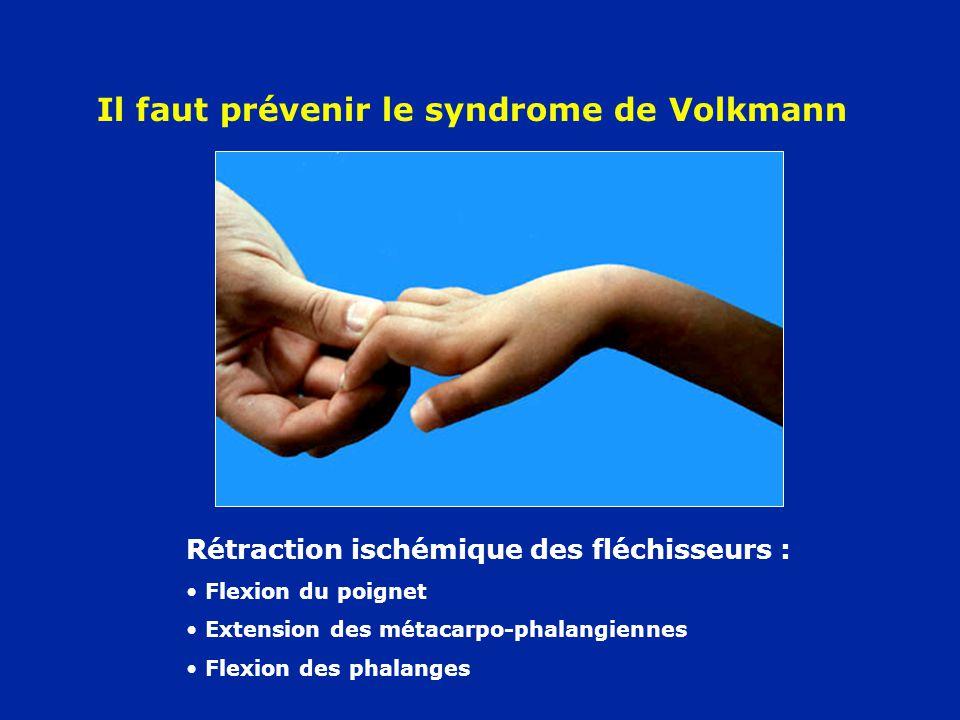 Rétraction ischémique des fléchisseurs : Flexion du poignet Extension des métacarpo-phalangiennes Flexion des phalanges Il faut prévenir le syndrome d