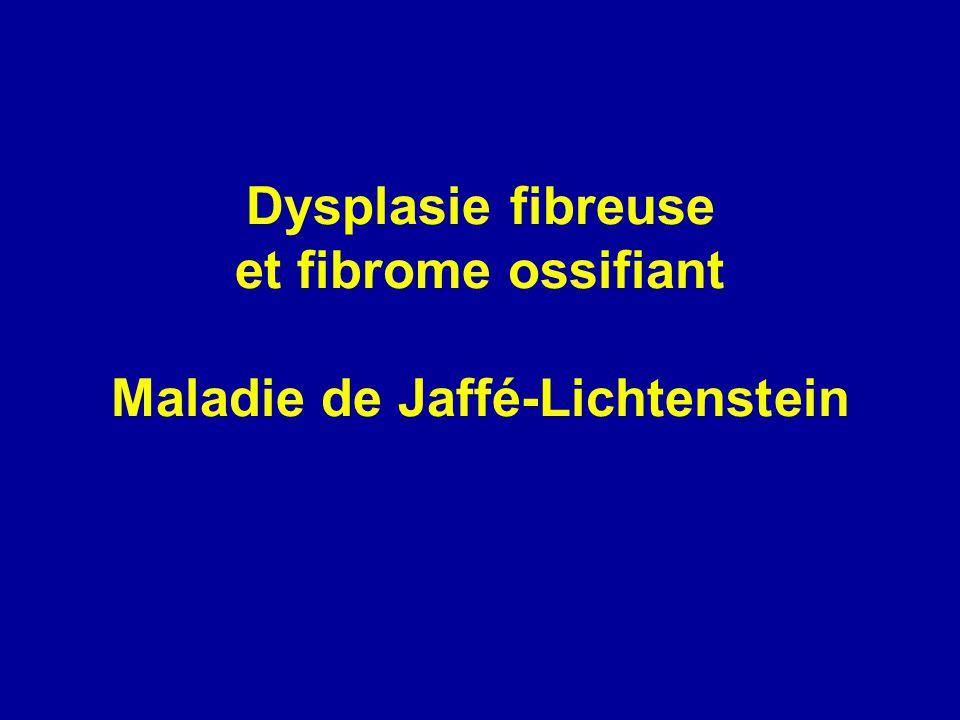 Traitement Forme monostotique Bénignité Biopsie Curetage et comblement par greffe +/- ostéosynthèse Traitement chirurgical en cas de fracture