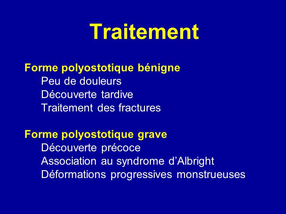 Traitement Forme polyostotique bénigne Peu de douleurs Découverte tardive Traitement des fractures Forme polyostotique grave Découverte précoce Associ