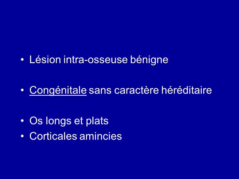 Lésion intra-osseuse bénigne Congénitale sans caractère héréditaire Os longs et plats Corticales amincies