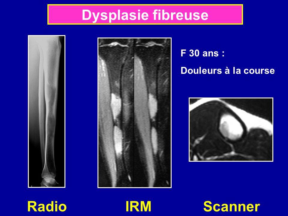 Radio IRM Scanner Dysplasie fibreuse F 30 ans : Douleurs à la course