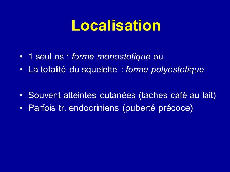 Localisations Fémur : 90 % Tibia : 80 % Bassin : 80 % Péroné et pied : 60 % Humérus et main : 50 % Crâne : 50 % Rachis