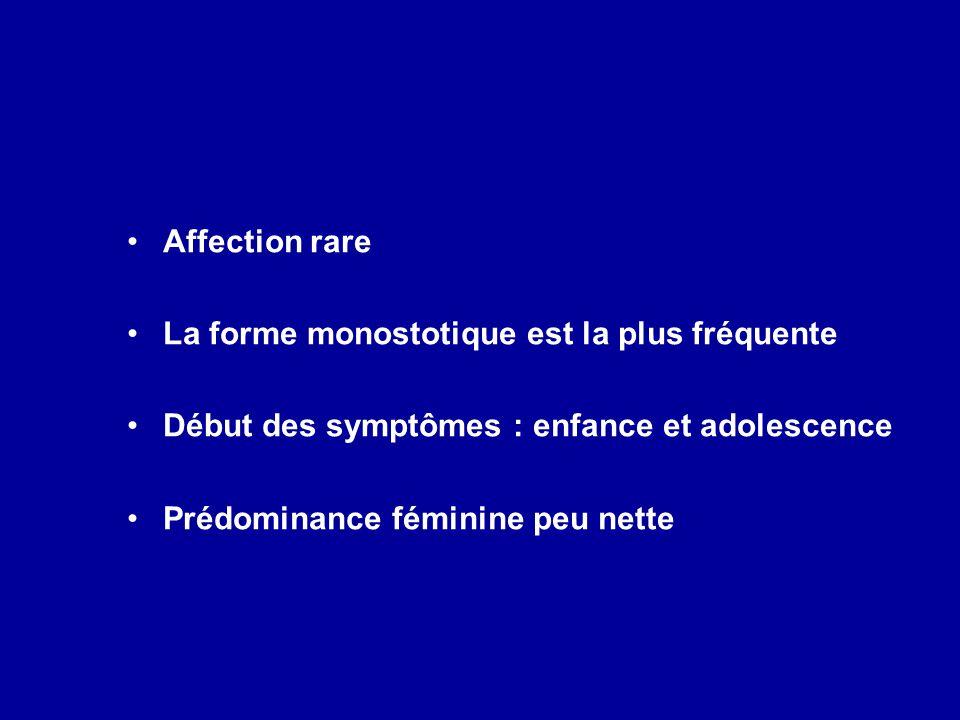 Affection rare La forme monostotique est la plus fréquente Début des symptômes : enfance et adolescence Prédominance féminine peu nette