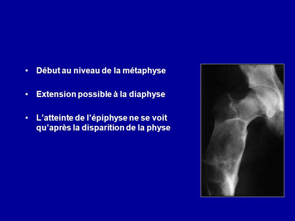 Début au niveau de la métaphyse Extension possible à la diaphyse Latteinte de lépiphyse ne se voit quaprès la disparition de la physe Formes centro-diaphysaires rares