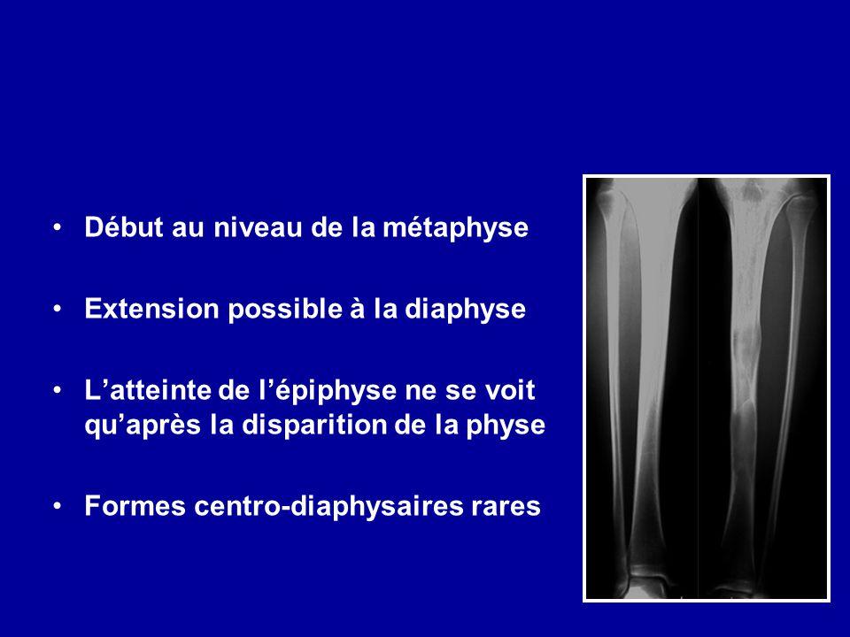 Début au niveau de la métaphyse Extension possible à la diaphyse Latteinte de lépiphyse ne se voit quaprès la disparition de la physe Formes centro-di
